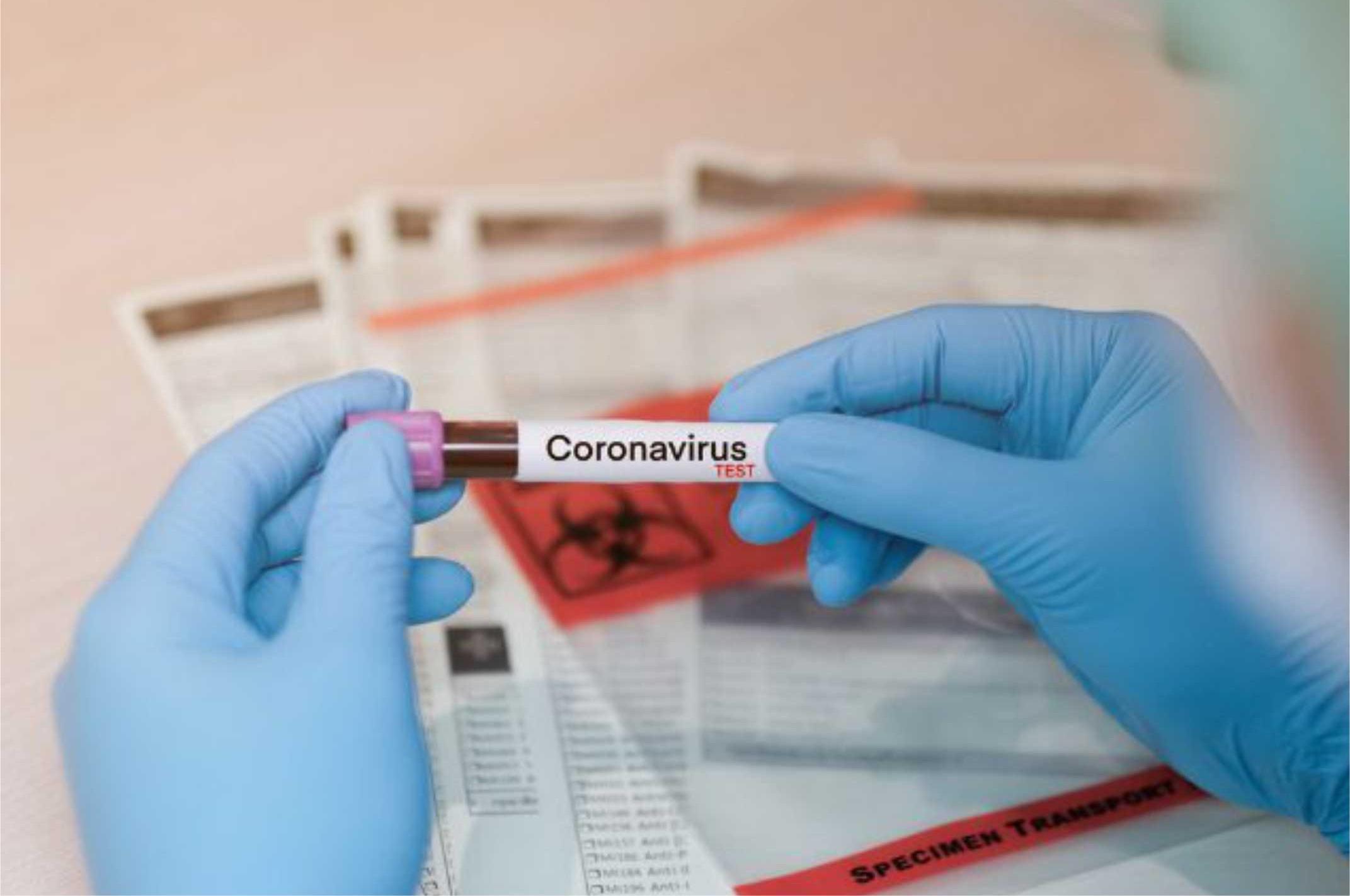 lha Solteira: Primeiro caso suspeito tem resultado negativo para Coronavírus